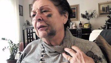 Photo of Torre del Greco. Anziana viene aggredita da un giovane: il racconto choc di Elena