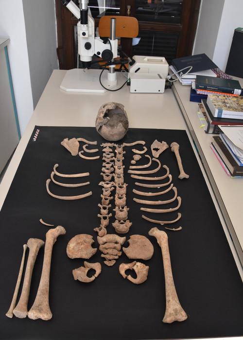 Photo of Pompei, iniziano gli esami sullo scheletro del bambino ritrovato negli scavi