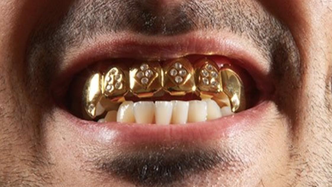 Photo of Ruba i denti d'oro dalla dentiera del nonno: scoperto e denunciato