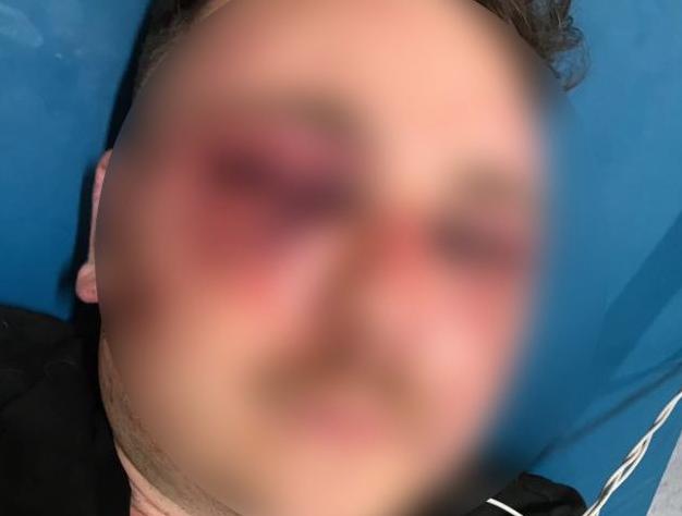 Photo of Orrore nel casertano: 31enne legato ad un albero e picchiato per un falso profilo Instagram