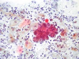 cellule neoplastiche