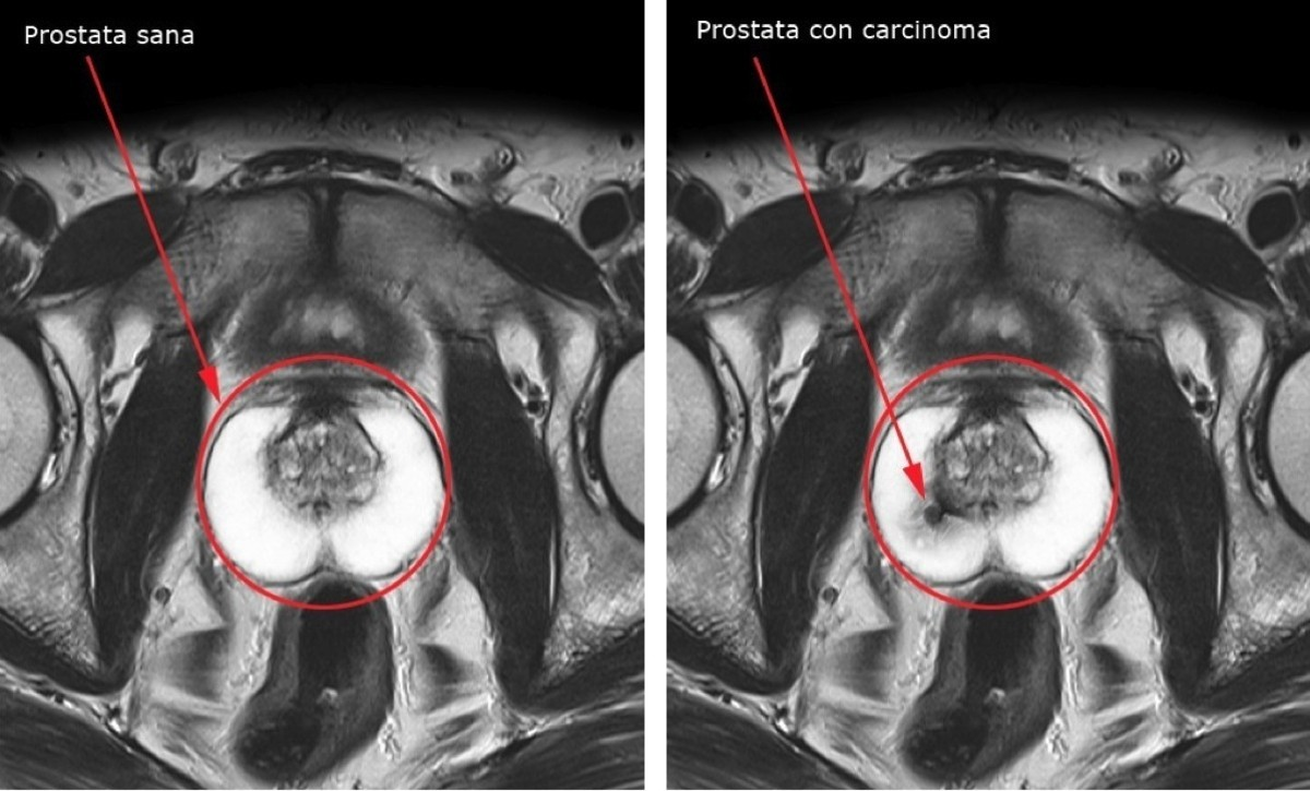terapia fotodinámica de la próstata en el menú de s raffaele di milano