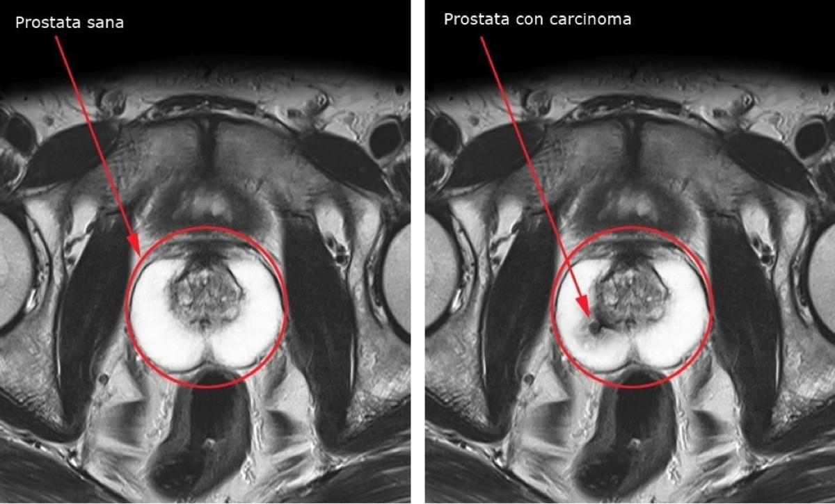 tumore-prostata